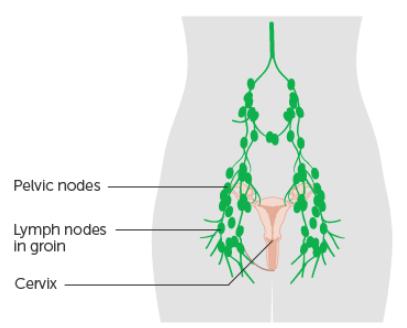 Swollen lymph nodes in groin